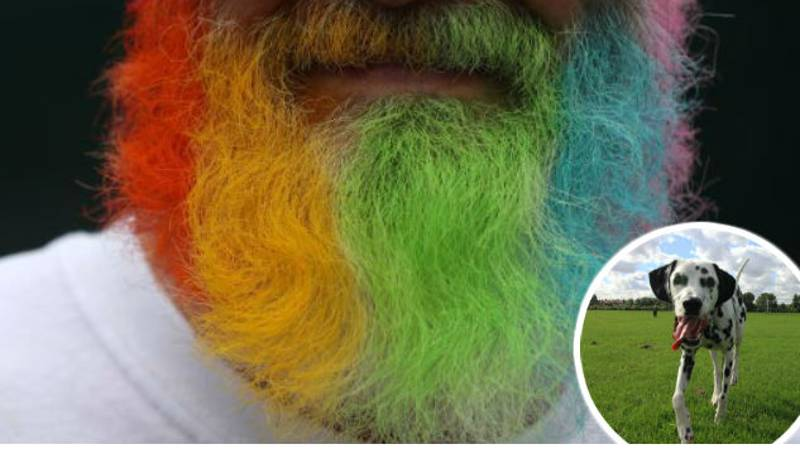 Study Finds That Men With Beards Carry More Germs Than Dogs