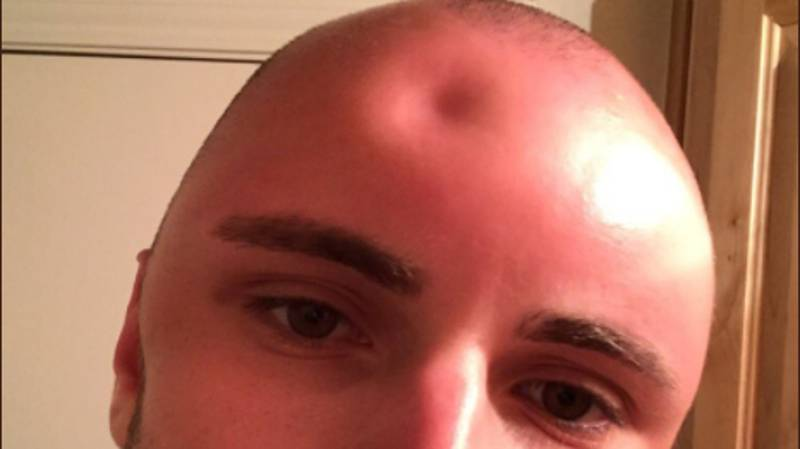 Guy's Head Gets So Sunburned It Swells To Twice Its Size