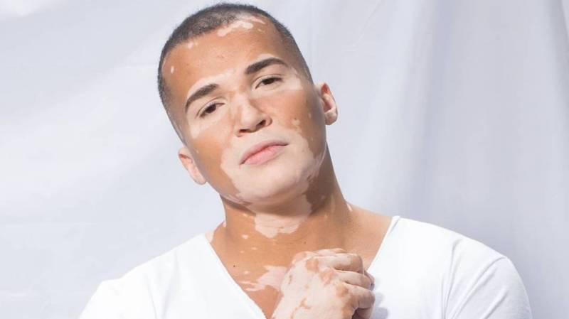 Model With Vitiligo Says Strangers Avoided Him As They Thought It Was Contagious