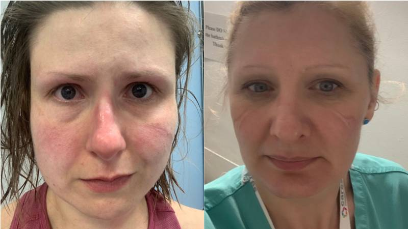 NHS Staff Share Photos Of Bruised Faces To Encourage Social Distancing