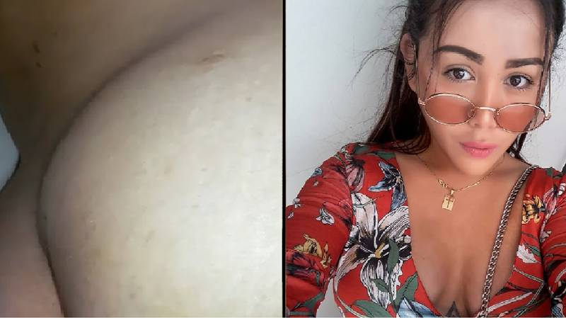 Woman Warns Against Butt Enhancement After Procedure Backfires... After Three Years