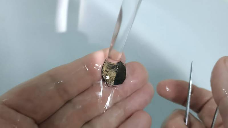 Man Has Coin Removed From His Nose After More Than 50 Years