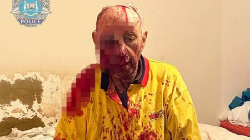 Elderly Australian Man Nearly Beaten To Death Has Woken From His Coma