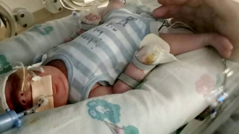 Premature Baby Beat E. coli, Sepsis And Covid In His First Eight Weeks