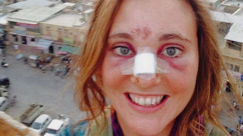 Cow Attacks British Backpacker For Singing Black Eyed Peas Tune