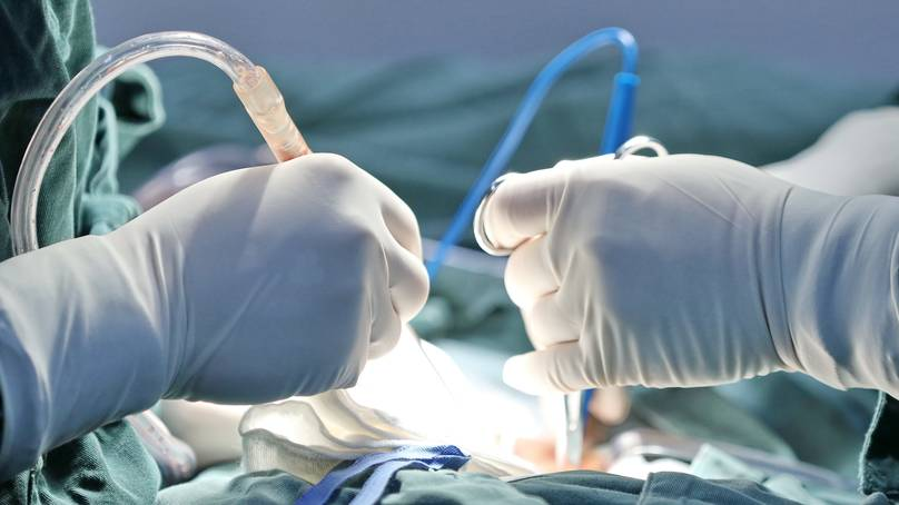 Woman Dies Of Covid After Receiving Lung Transplant From Infected Patient